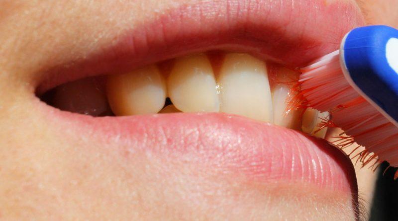 Igiene-orale-tecnica-e-consigli-durante-il-trattamento-ortodontico-studio-dentistico-dottor-gola-dentista-casteggio-1